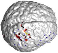 Xu Cui » Brain surface plot with MatLab